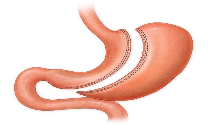 Sleeve_Gastrectomy.jpg