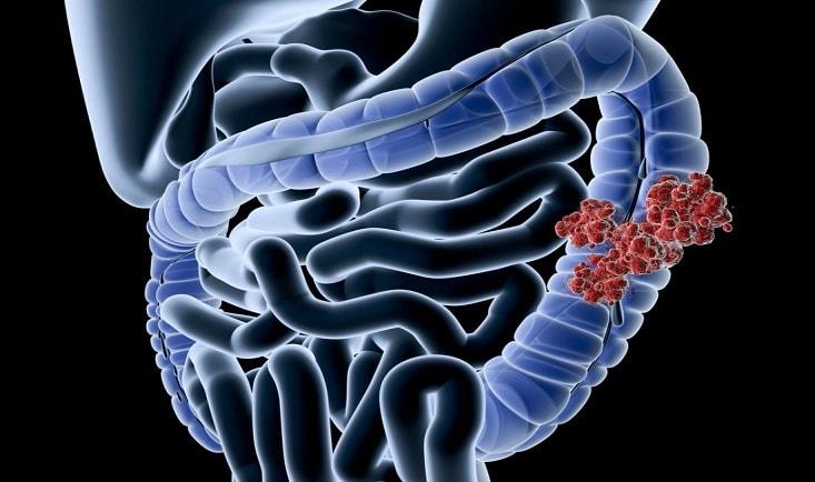 Tumora-colon1.jpg
