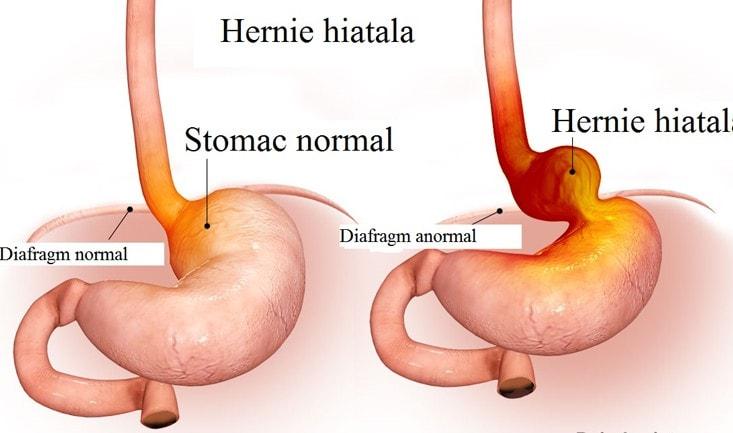 hiatal-hernia-1.jpg