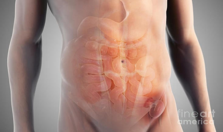 2-inguinal-hernia-science-picture-co.jpg