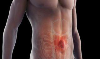 Operatia laparoscopica hernie ombilicala