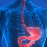 Esofagul Barrett şi boala de reflux gastro-esofagian (BRGE)