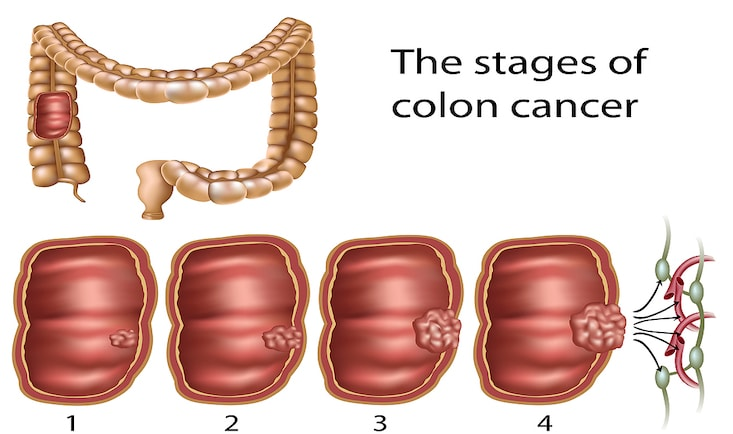 Cancer-colon-stadii.jpg